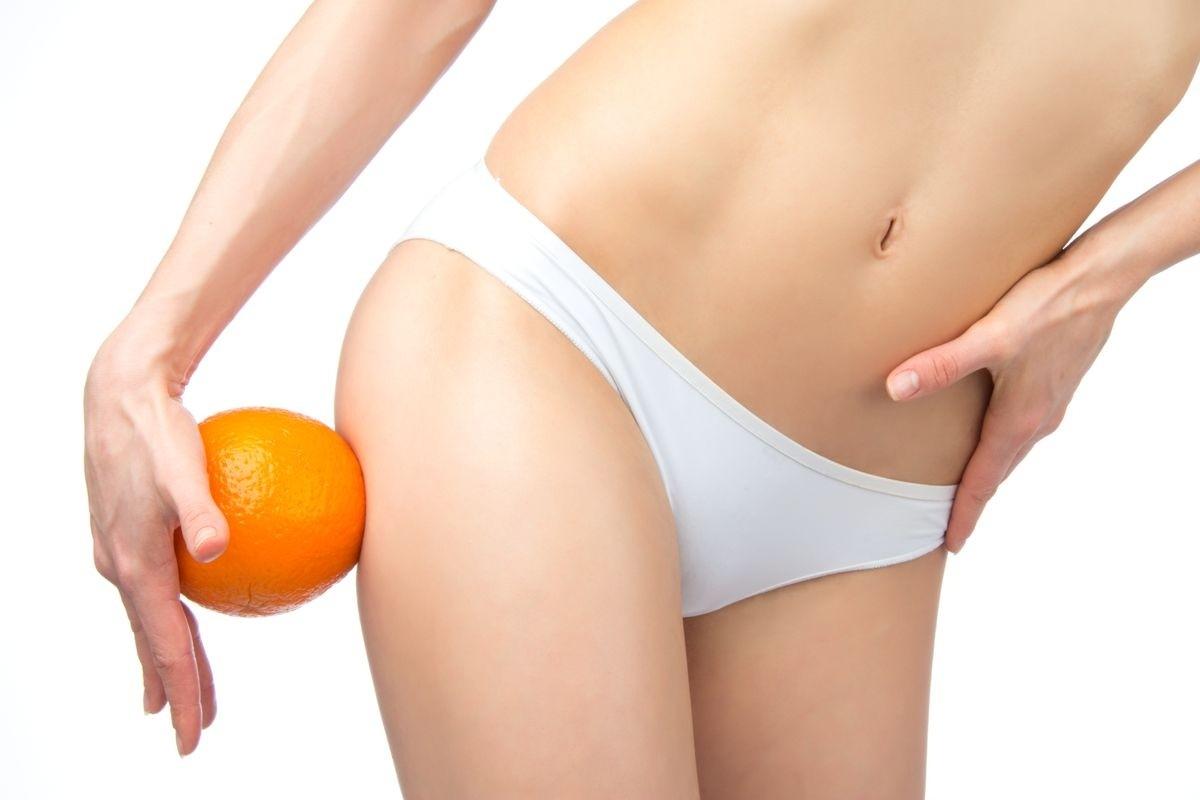 Апельсиновая корка на ногах