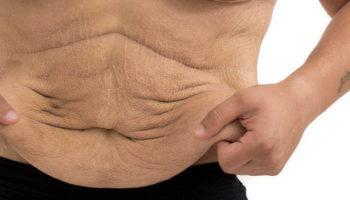 После похудения обвисла кожа − методы решения проблемы
